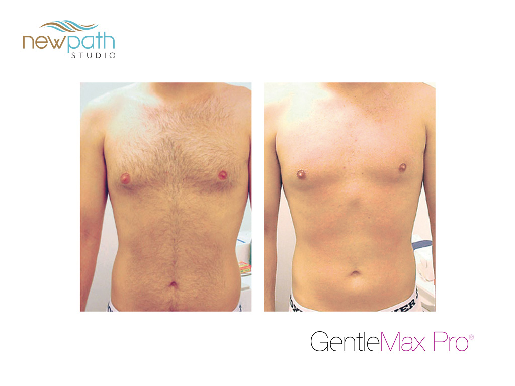 Gentle MaxPro Hair removal before and after