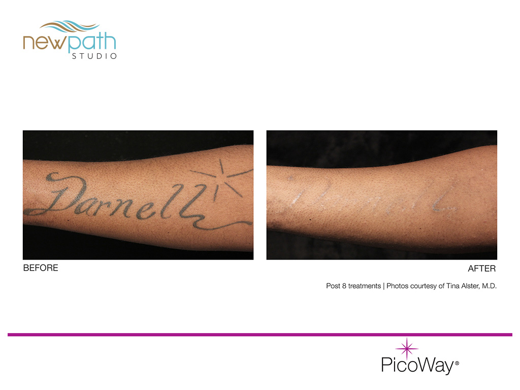 Tattoo Removal | Laser Skin Care, Microneedling, Hair Removal ...